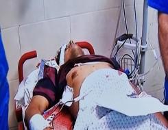 العرب اليوم - ارتفاع ضحايا غزة إلى 129 والفصائل الفلسطينية ترد بالصواريخ والمسيّراتعلى الإحتلال الإسرائيلي