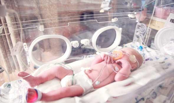 """العرب اليوم - أطباء يكتشفون سر تلف الدماغ لدى """"الأطفال الخدّج"""""""