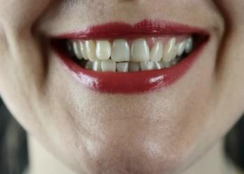 العرب اليوم - علاج لفقر الدم يمنح أملاً في القضاء على تسوس الأسنان