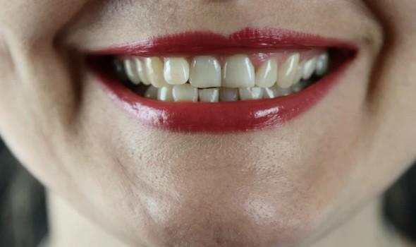 العرب اليوم - تحسين صحة الفم يقلل حدة أعراض كورونا